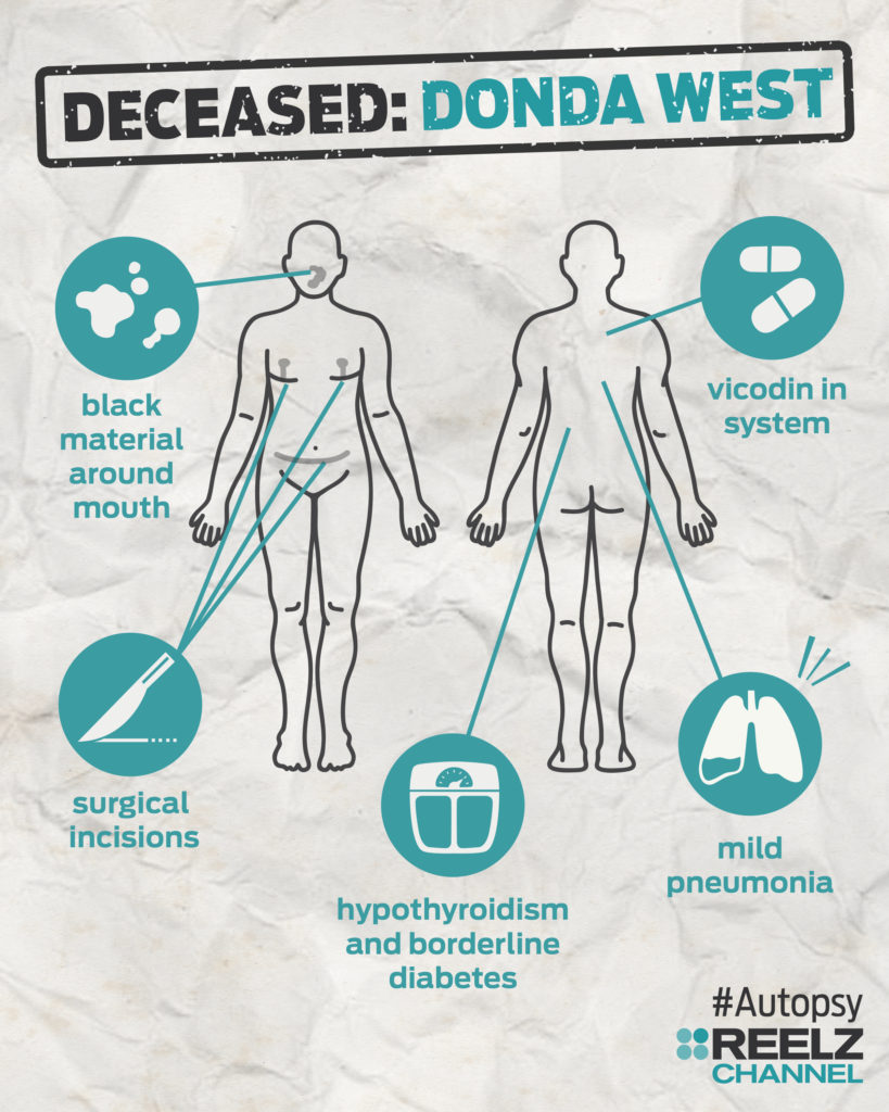 autopsy_infographic_dondawest_blank