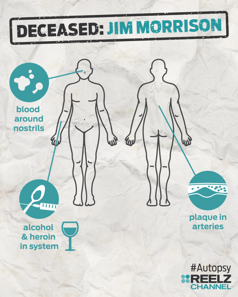 autopsy_infographic_jimmorrison_blank