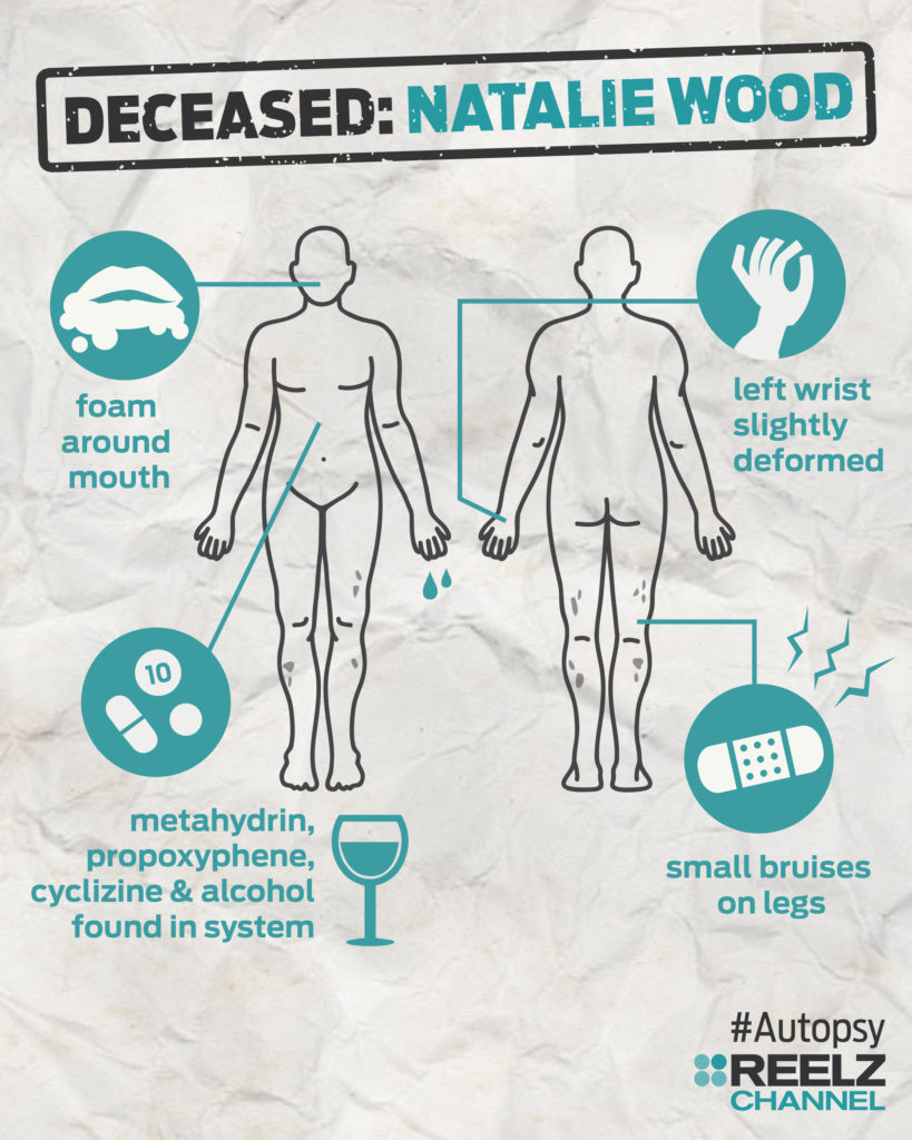 autopsy_infographic_nataliewood_blank